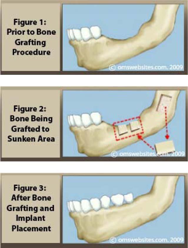 bone_grafting