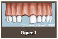 dental_implants1