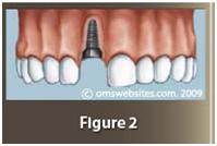 dental_implants2